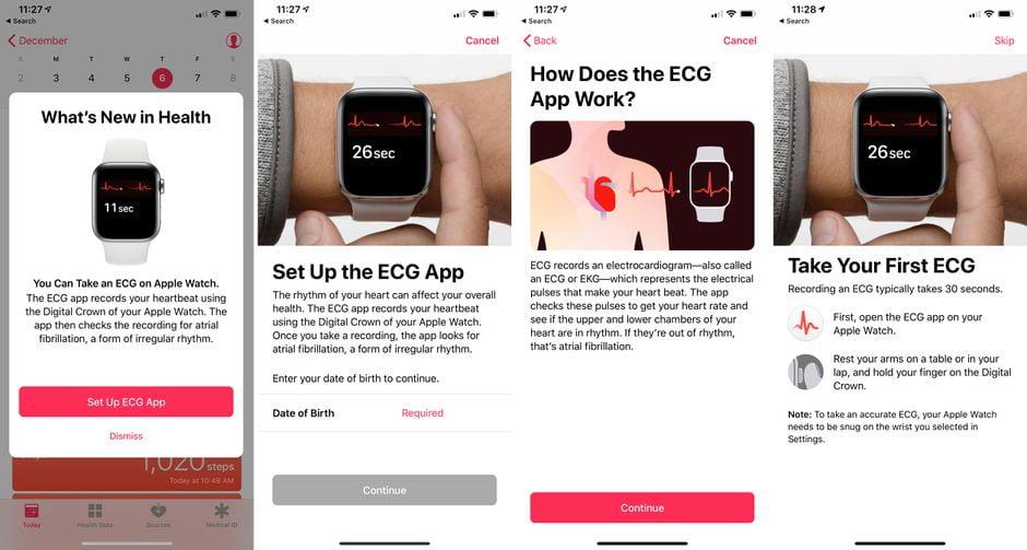 test apple-health-watch-ecg