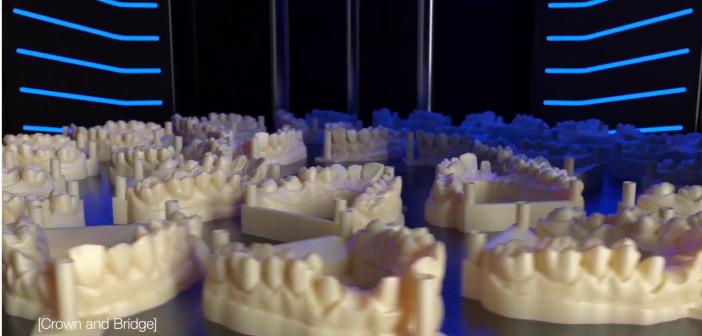 prothèses et modèles dentaires imprimés en 3D