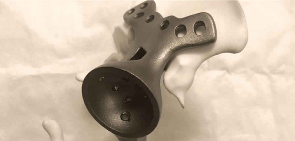 implant de vertèbre en titane imprimé en 3D